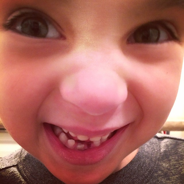 Out of nowhere O's tooth got real wiggly and fell out! Whaaaaaaaaattt?
